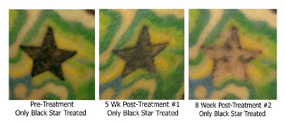 Eliminink tattoo removal, before and after #1