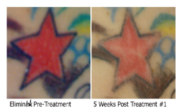 Eliminink tattoo removal, before and after #2